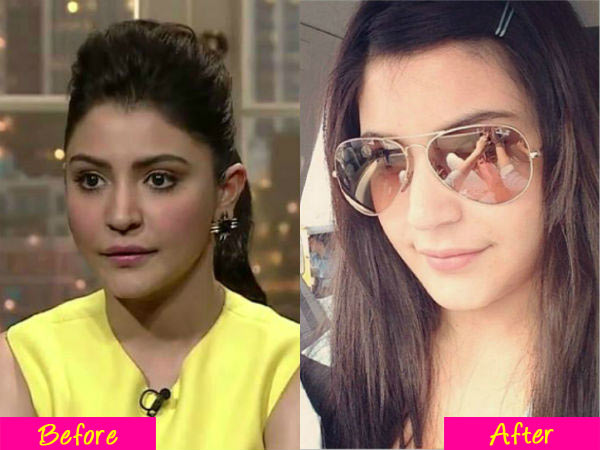Anushka Sharma's lips go back to normal!