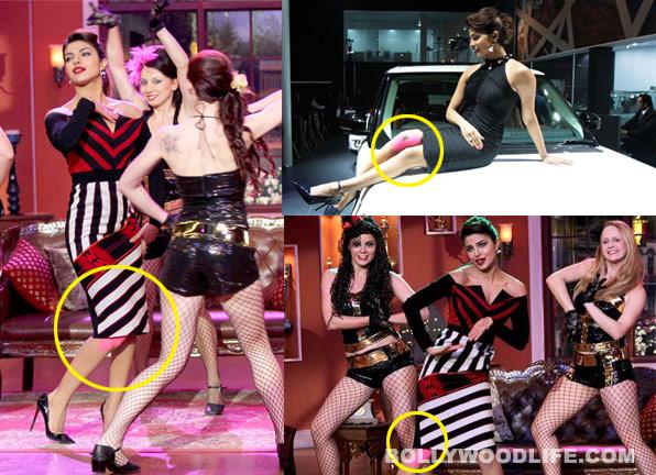 Priyanka Chopra's injury rumours turn out to be false!